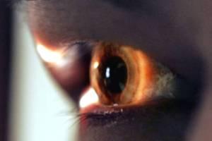 """Estudo """"Custo do Glaucoma em Portugal"""""""